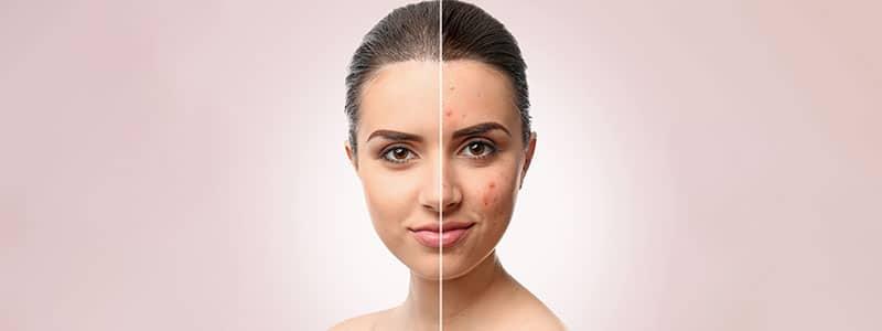 acnbehandeling-header